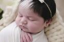 الطفلة مايا ولدت بمتلازمة الشعر الابيض