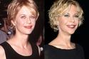 صور: بعد عمليات التجميل.. مشاهير حصلوا على وجوه جديدة كليا 😱