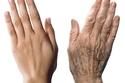 تجديد شباب اليد: من العمليات الجديدة والتي تعمل على إزالة تجاعيد اليد من خلال حشو الجلد والليزر.