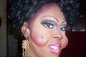 صور أسوأ عمليات التجميل في التاريخ!