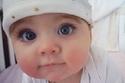 من الطفلة التي جذبت بلون عينها الكثيرين؟!.. شاهدوا الصور