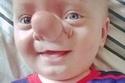 """حالة مرضية نادرة حولت هذا الطفل إلى """"بينوكيو"""".. شاهدوا الصور"""