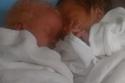 التوأم المختلف عند الولادة