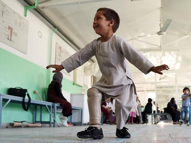 الصور الأكثر تأثيرا في 2019: من بينها طفل يرقص بقدم اصطناعية