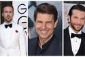 صور قبل وبعد التجميل: هكذا أصبح المشاهير الرجال أكثر وسامة