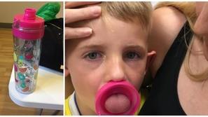 صور: كاد يفقد النطق إلى الأبد.. زجاجة مياه تحتجز لسان طفل صغير بداخلها