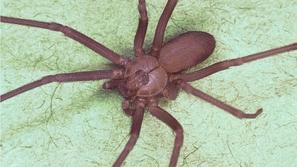 بعد تكرار شكواها من الآلم.. أطباء يعثرون على عنكبوت سام في أذن امرأة