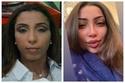 صور نجمات عرب قبل وبعد تفتيح البشرة: هكذا تغيرت ملامحهن تماماً