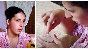 فيديو وصور: فتاة تبكي دموع من الكريستال تعليق الأطباء صادم جدًا