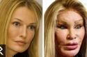 صور الأشكال الحقيقية لأصحاب أفشل عمليات التجميل في التاريخ!