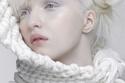 أناستاسيا جيدكوفا أُطلق عليها أجمل فتاة ألبينو في العالم