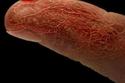 الأوعية الدموية للإصبع