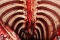التجويف الصدري