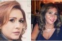 مها المصري تعرض وجهها للتشوه بسبب الفيلر