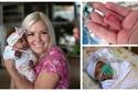 صور: بعد 5 أشهر من الحمل.. نجاة أصغر مولودة في العالم بوزن تفاحة كبيرة
