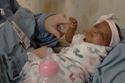 الطفلة سايبي خلال العلاج