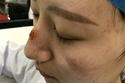 الجروح على وجه الممرضة