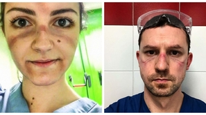 صور مؤلمة للأطباء بعد العمل لساعات طويلة: هكذا تغيرت ملامحهم