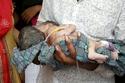 التوأم ولد لأم هندية