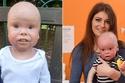 صور مرض نادر يحول هذا الطفل الجميل إلى دُمية متحركة