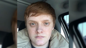 صور: عمره 31 عامًا ولم يصل بعد إلى سن البلوغ