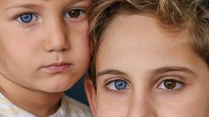 صور: حالة نادرة يُولد بها طفلين.. لكل منهما عين بنية والأخرى زرقاء!