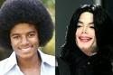مايكل جاكسون الذي تغير شكل بشرته من كثرة إجراء عمليات التجميل
