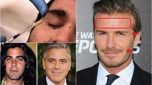 مشاهير رجال كشفت صورهم حقنهم للبوتوكس وإجرائهم عمليات تجميل!