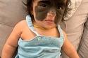 الطفلة قبل الجراحة