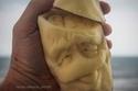 بطاطس في جراحة عاجلة