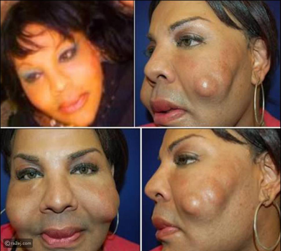 صور مفزعة لأفشل عمليات التجميل على مستوى العالم