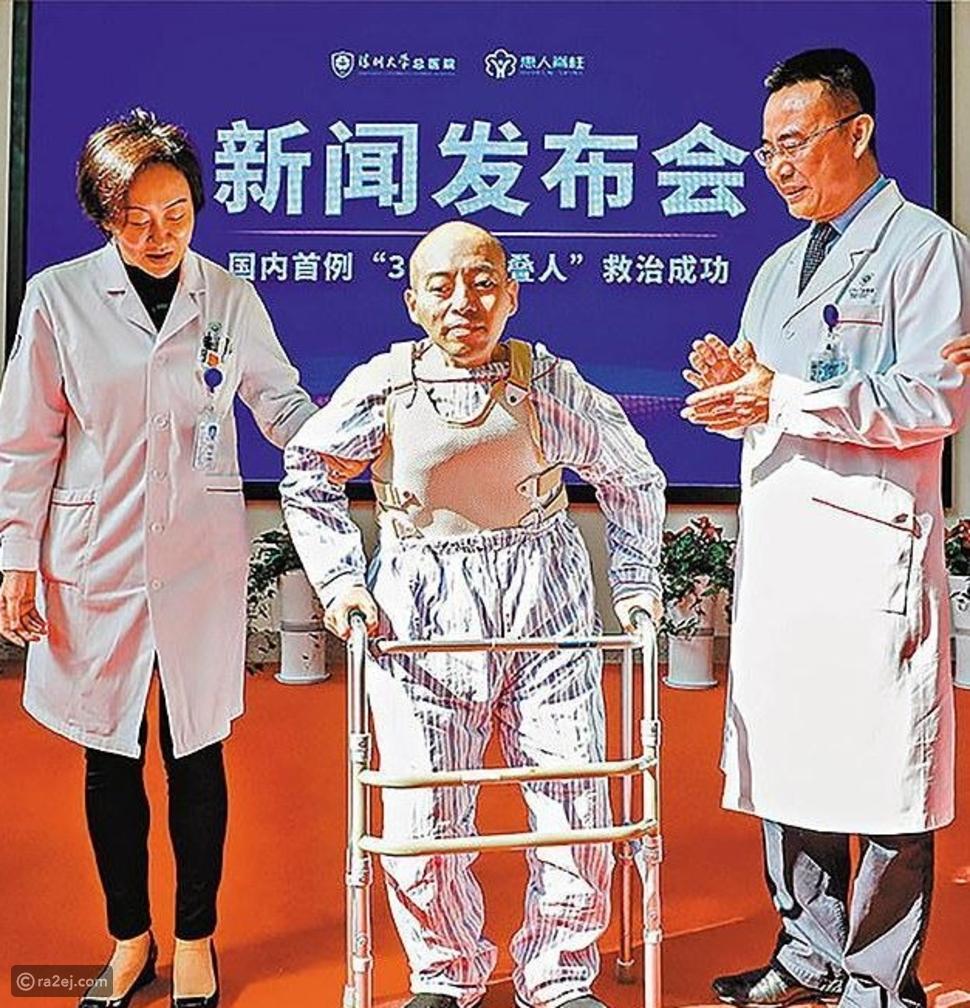 الرجل المطوي في الصين يستقيم بعد 28 عاماً
