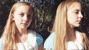 صور فريدة من نوعها لتوأم بنات من ايسلاند
