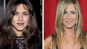 صور أشهر وأجمل مشاهير هوليوود قبل وبعد عمليات التجميل ، مارأيكم ؟