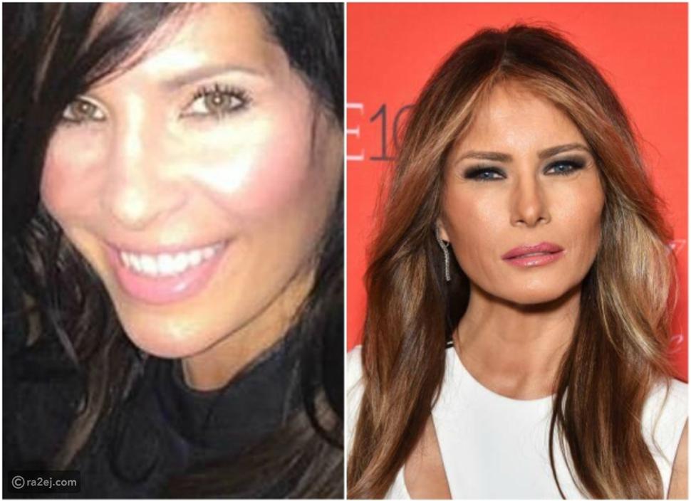 """امرأة تخضع لـ8 عمليات تجميل لتشبه """"ميلانيا ترامب"""""""