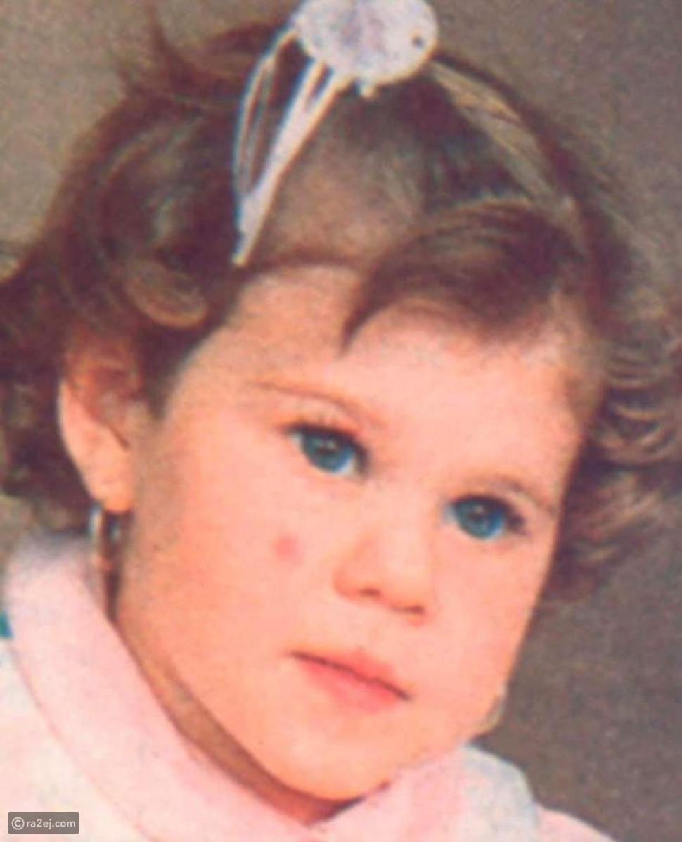 امرأة تفقد أجزاء من وجهها بسبب مرض نادر وغريب: ما قصتها؟