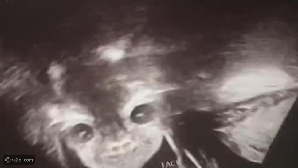 صورة جنين في بطن أمه تثير الذعر على الإنترنت.. الأم في صدمة