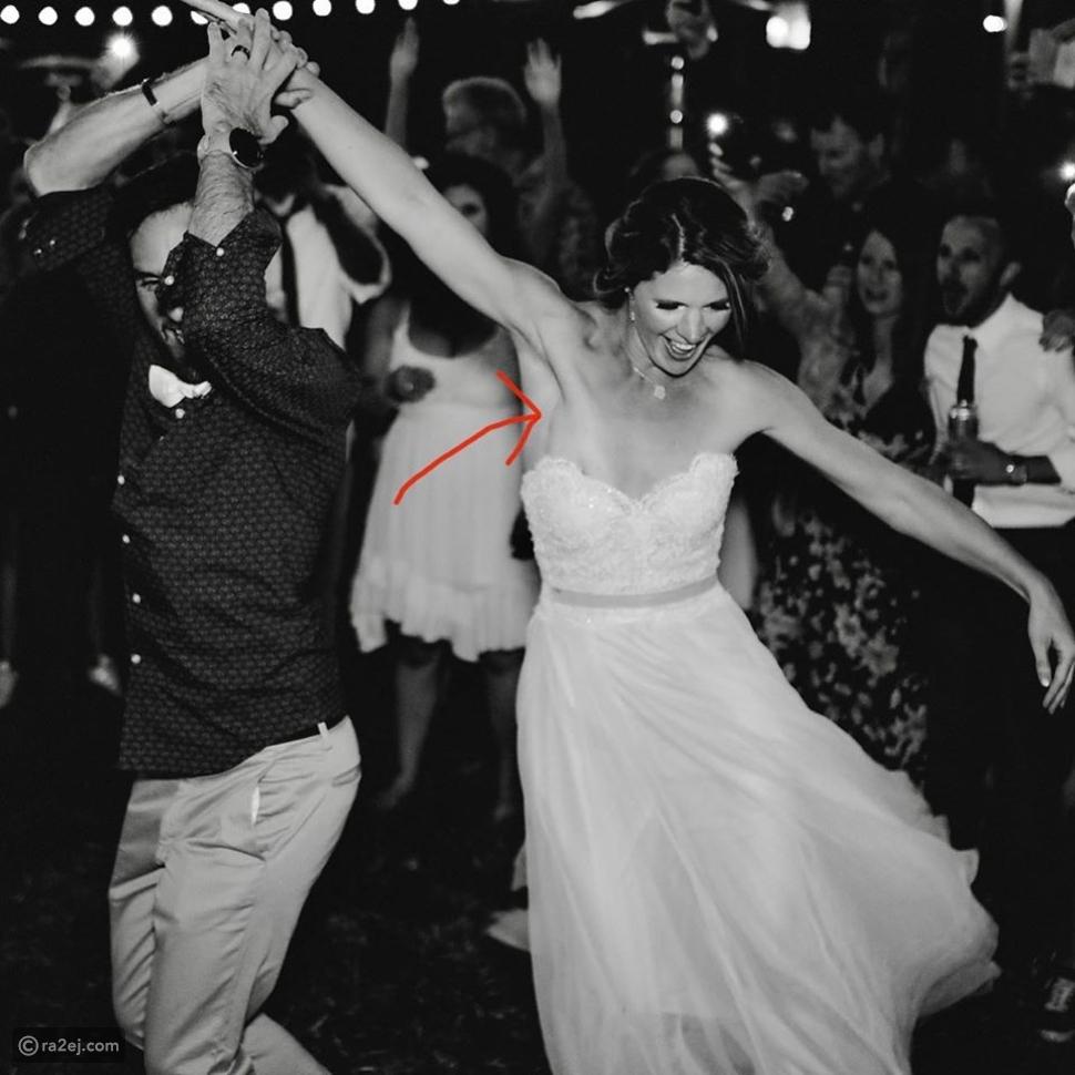 صورة من حفل زفاف تكشف إصابة العروس بمرض خطير