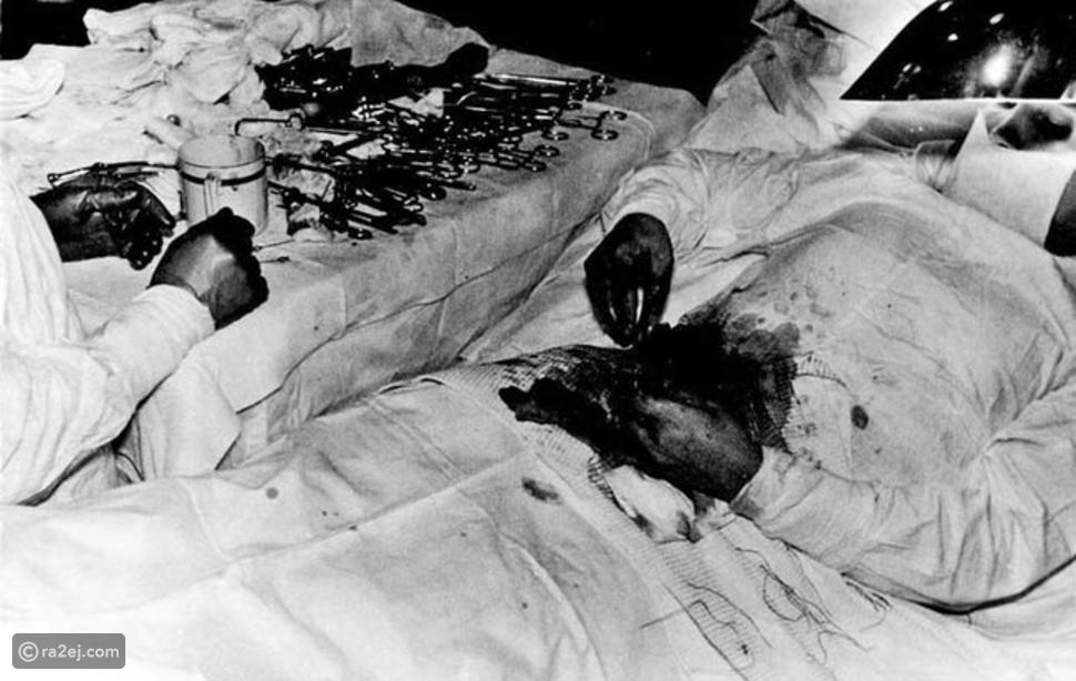 اضطر الطبيب السوفييتي الشهير ليونيد روجوزوف إلى اجراء جراحة عاجلة على نفسه لاستئصال الزائدة الدودية عام 1961