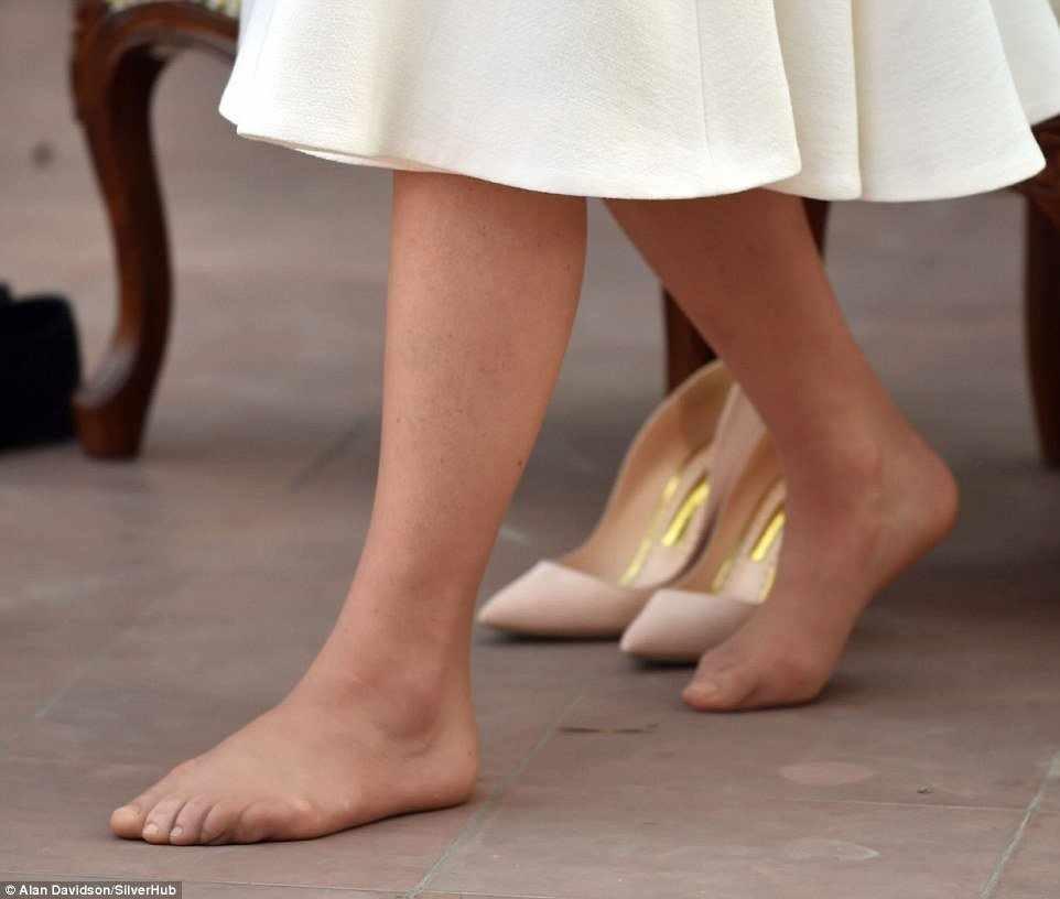 أصابع قدمي كيت ميدلتون تضعها في موقف محرج