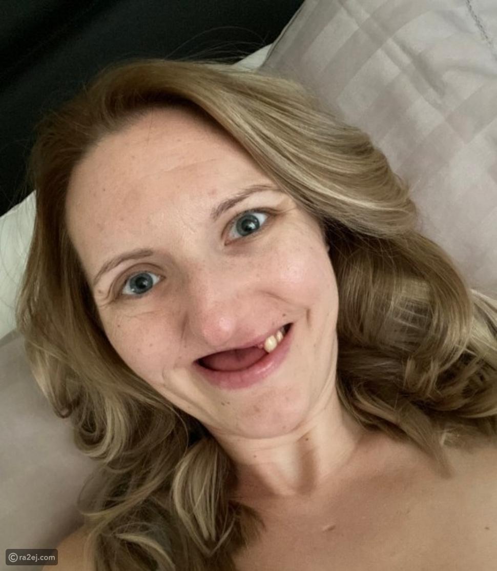 أهملت علاج أسنانها فترة طويلة لتكتشف إنها مصابة بالسرطان