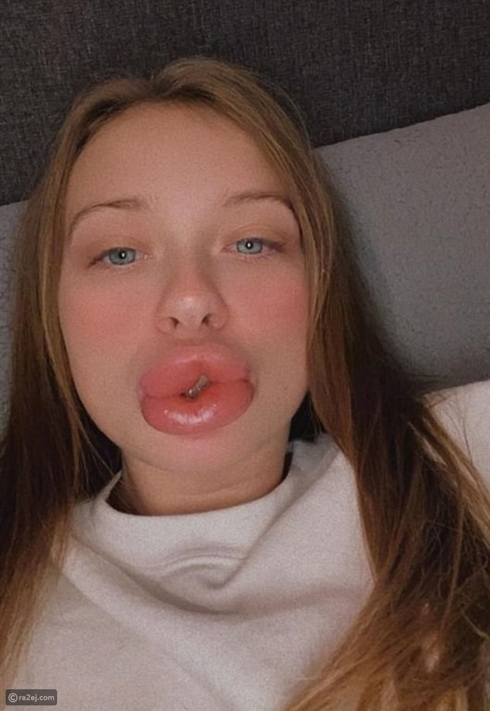 فتاة ترصد ماذا حدث في وجهها بسبب حقنة فيلر: صور ستصيبك بالصدمة