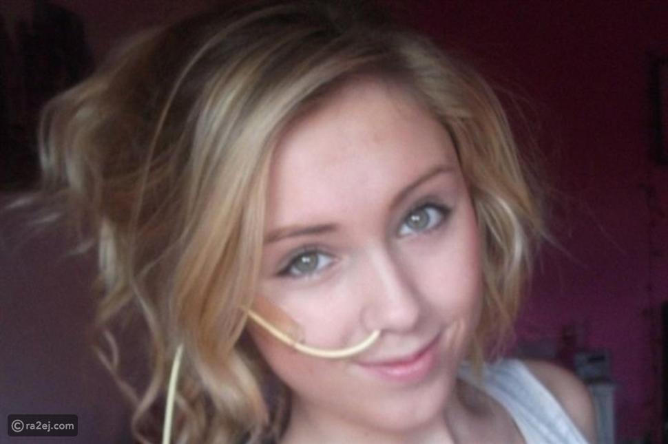 حالة مرضية نادرة تعرض تلك الفتاة للتنمر:  تتقيأ 30 مرة يوميًا