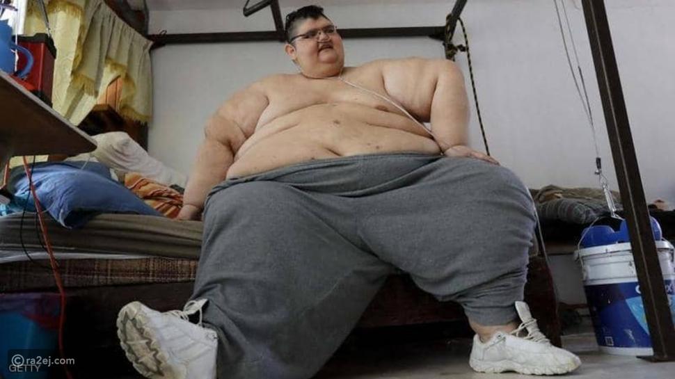 صور: أسمن رجل في العالم يخسر 330 كيلوجرام من وزنه كم كان وزنه السابق