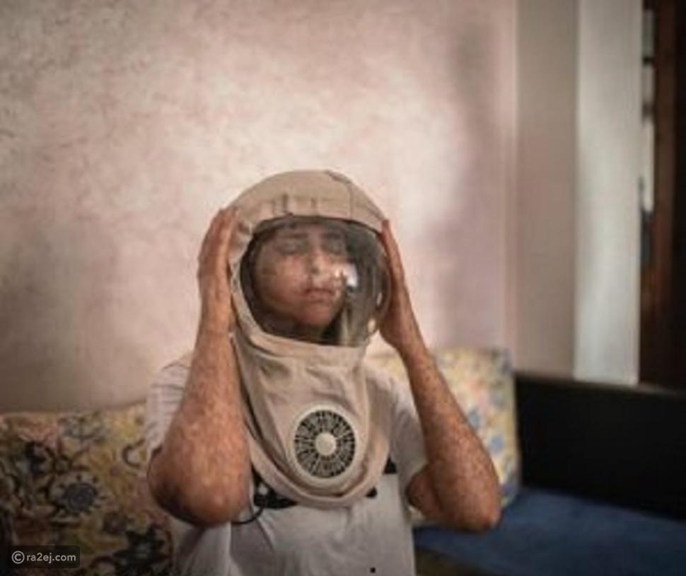 فتاة عاشت في الظلام لمدة 20 عاماً و لا تستطيع الخروج بدون قناع