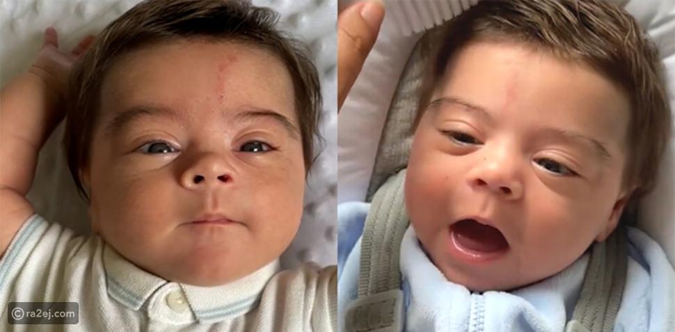 صور: أطفال حديثي الولادة لديهم شعر سميك تبهر رواد السوشيال ميديا