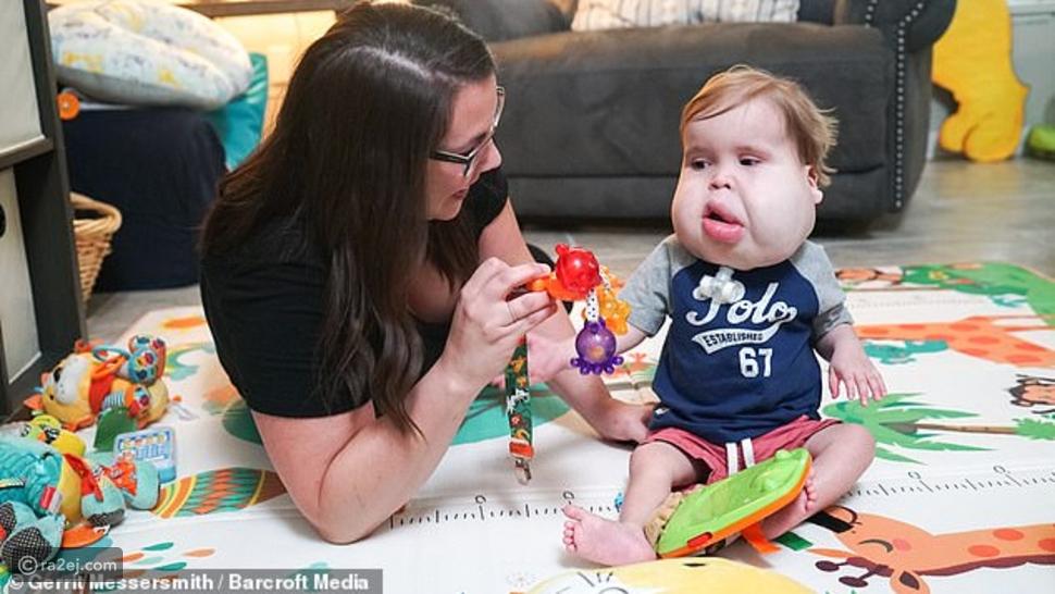 بملامح دمية من القطن.. حالة نادرة لطفل يولد بخدود ضحمة للغاية