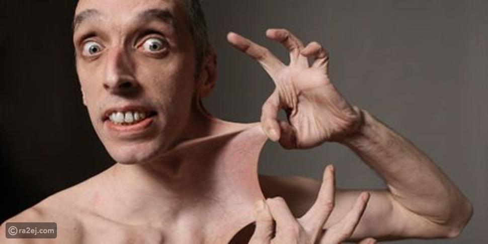 حامل رقم غينيس للأرقام القياسية يمكنه شد الجلد إلى طول لا يصدق