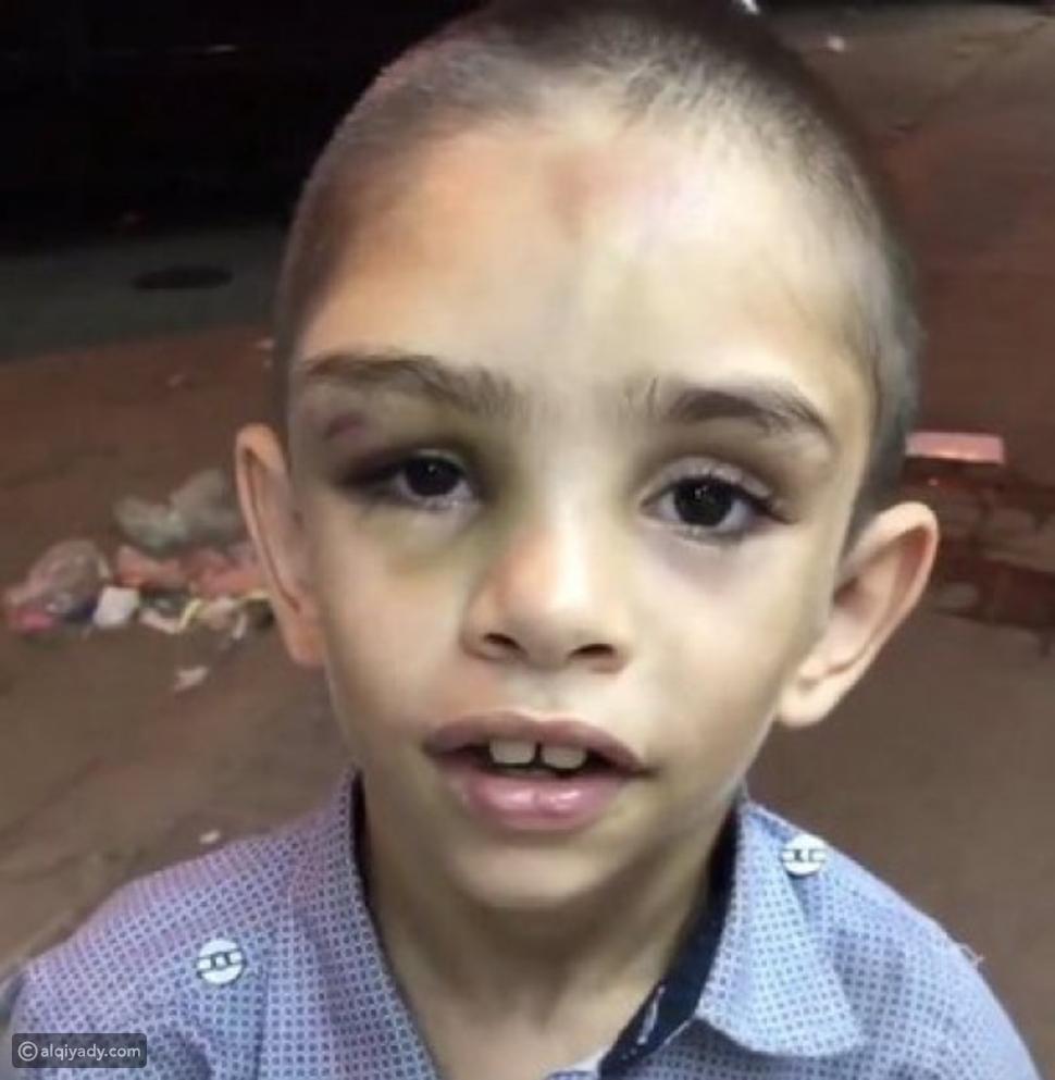 فيديو: تفاصيل قصة الطفل السوري المعنف في السعودية: ما هو مصيره؟
