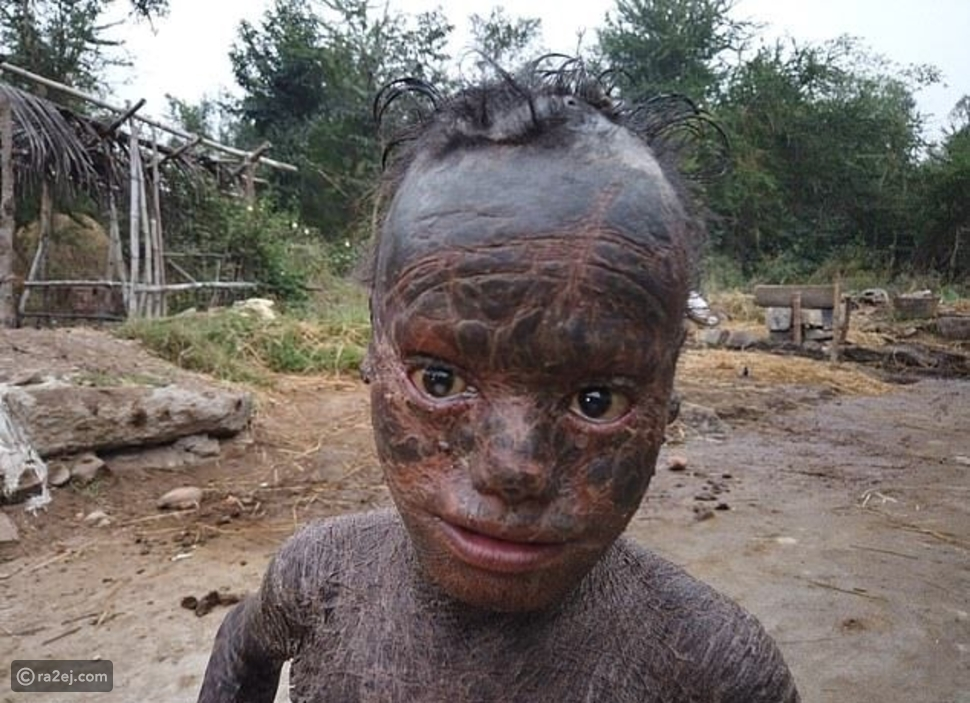 فيديو وصور: طفل عمره 10 سنوات يتحول إلى ثعبان بشري: السبب مأساوي
